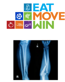 Eat Move Win Logo and Fracture X-Ray